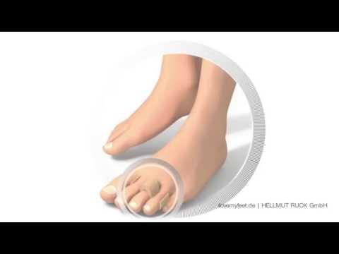 Jak leczyć guzy na dużym palcach
