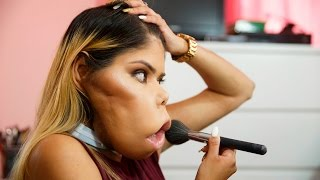 Inspirational Vlogger Redefines Beauty