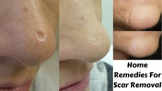 Top 3 Home Remedies to get rid Of Scars Naturally At Home   Scar Removal Easy & Effective Remedies
