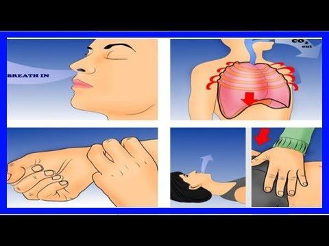 Arythmie cardiaque à mesure de la pression artérielle