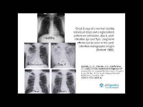 Video What is the long term impact of Legionnaires' disease?