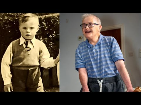 77-Year-Old Is 1 of World's Oldest People With Down Syndrome