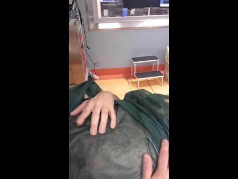 Trattamento di crassula di varicosity
