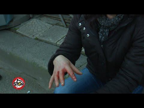Presionin e gjakut dhe gurët në veshka