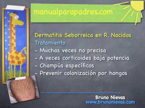 Sobre el spray de la psoriasis anti psori nano