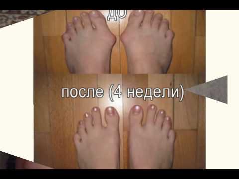 Шишка на ноге в районе большого пальца