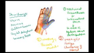 Carpal tunnel syndrome – Pain in hand