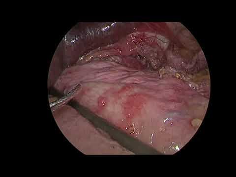 Operacja laparoskopowa skrętu żołądka (gastric volvulus)