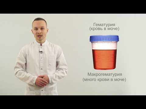 Лечение простатита этиотропное