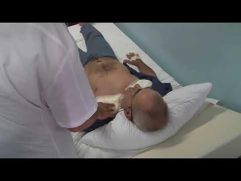 Sartai hipertenzija Stupanj 1