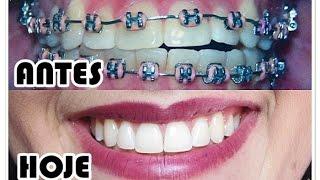 Aparelho Ortodontico Antes E Depois De 2 Anos Aparelho Dentario