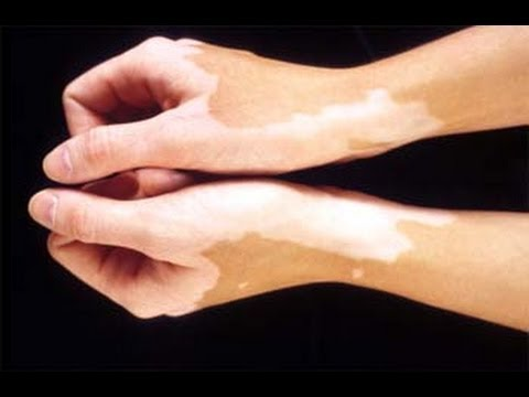 Video How To Cure White Spot On Skin - VITILIGO Treatment Naturally