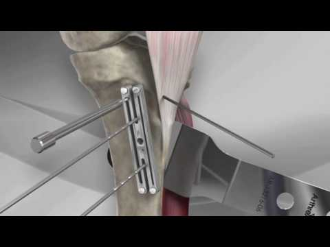 Tibial Tubercle Osteotomy With Arthrex® T3 AMZ System Mp3