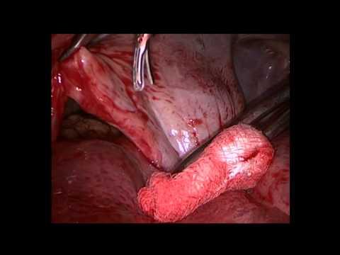 Дефект диафрагмы - после травмы, торакоскопия. Печень в плевральной полости.