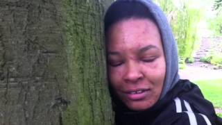 Dermatitis and tree hugging working with nature to heal