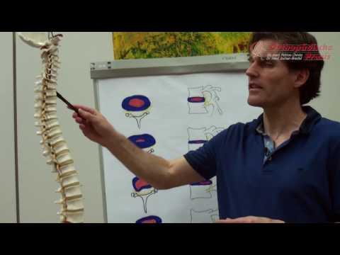 Erhalten die Schmerzen im Schultergelenk zu befreien
