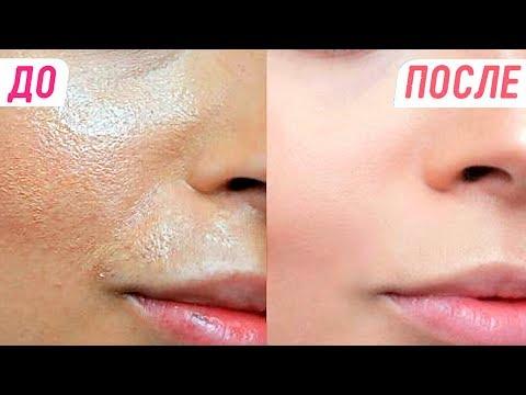 Как убрать веснушки на лице у косметолога
