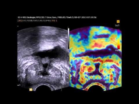 Schleim in der Prostata-Analyse