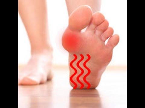 Народное средство от косточек на больших пальцах ног