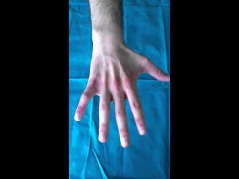 Massaggio alla contrattura dellarticolazione della spalla