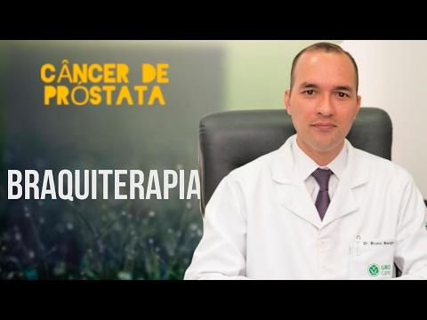 30 causas de la prostatitis