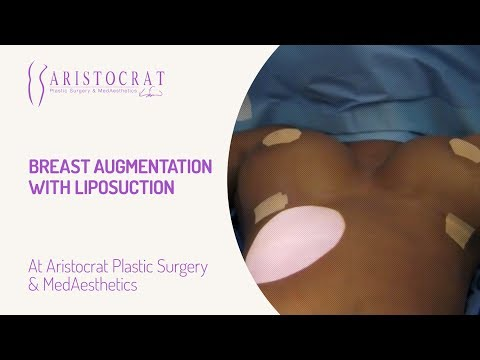 Breast Augmentation with Liposuction
