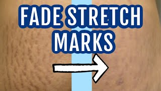 7 ways to fade stretch marks  Dr Dray