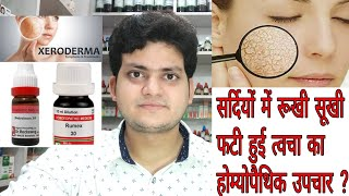 Keloid!Homeopathic medicine for keloid?? explain! - Самые лучшие видео