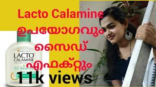 Review Lacto Calamine. Uses Of Lacto Calamine
