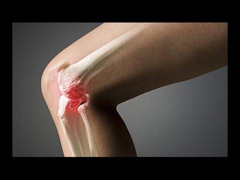 Стерлась смазка в коленном суставе