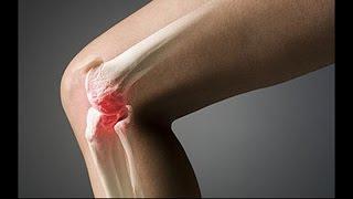 Артроз коленного сустава. Как укрепить колени