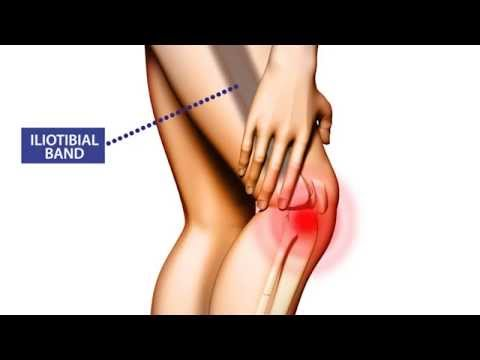 Video Knee Pain: Symptoms, Treatment, and Prevention