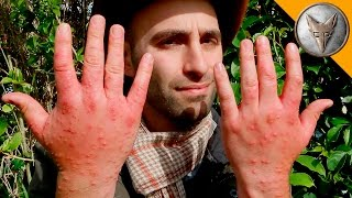 Worst Insect Stings EVER!