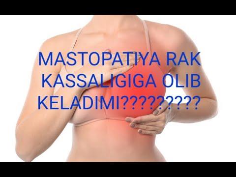 Flebaven mg tabletta 60X – talalkapont.hu