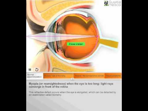 Lehetséges nagy myopia esetén szülni?