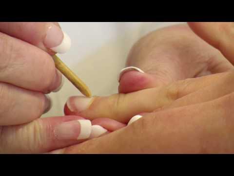 Die Tabletten von gribka der Nägel termikon