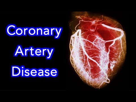 Video ✔ Coronary Artery Disease (CAD) Animation - MADE EASY
