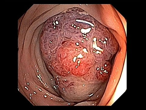 Resection of a Giant Polyp