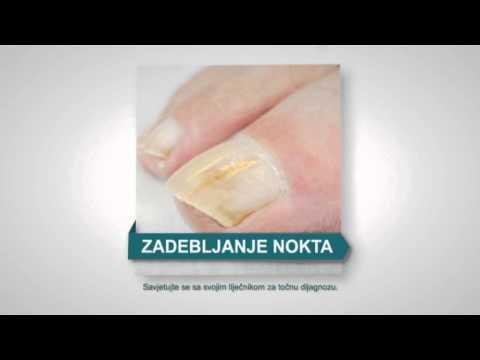 Derinat und gribok der Nägel