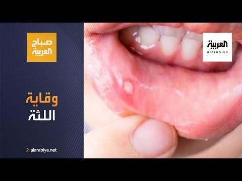 العرب اليوم - شاهد: كيف يمكن تفادي أمراض اللثة والقول أنها تعاني من الأمراض