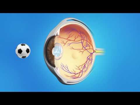 Mi a látás állapota