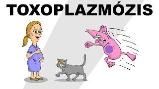 Toxoplazmózis