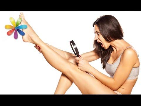 Как убрать веснушки с лица в косметологии