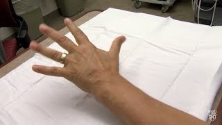 Mayo Clinic Minute: What may be causing your hands and feet to tingle