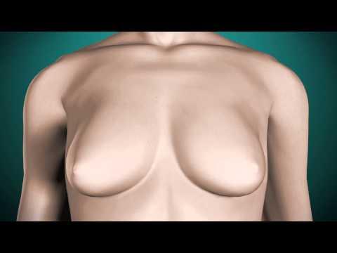 Zwiększenie kąpielowe piersi