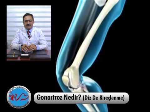 Verformen des Knie gonartroz ICD 10