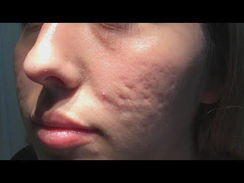 Erecție letargie