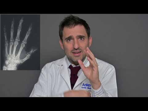 A csigolyák közötti deformáló artrózis
