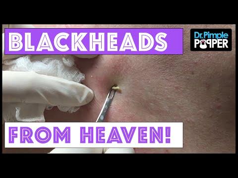 Back Blackheads from Heaven!