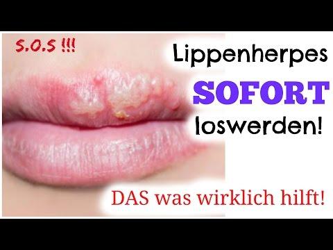 SOS Lippenherpes - SOFORT beseitigen - mein Wundermittel gegen Herpes , Fieberbläschen